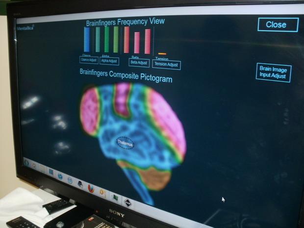 26 novembre 2011 - Bergamo ospedale Don Orione. Barbara prova il NEURAL IMPULSE ACTUATOR con il software elu1 inventato dall'ing.informatico Daniele Salpietro. Sequenza test.